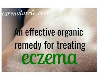 An effective organic remedy to treat eczema